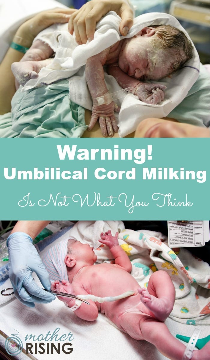 "Umbilical cord milking is where the cord is pinched and ""milked"" immediately following birth in order to quickly push blood into the baby (as you would squeeze ketchup out of a packet, or honey out of a honey stick).  Starting as close to the placenta as possible, moving towards the baby, a care provider milks the cord several times before the cord is finally clamped and cut, usually within 20 seconds.  Umbilical cord milking is also sometimes called ""stripping the cord""."