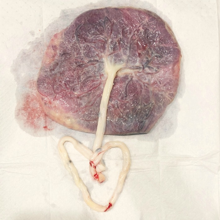 photo of placenta with cord in the shape of a heart